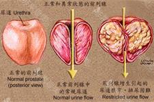 29~33岁得了前列腺增大有排尿障碍韩国男科是如何治疗的?