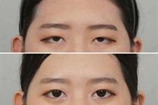 眼尾下垂怎么提升?眼尾提升疼吗?韩国kidari医院用案例解答