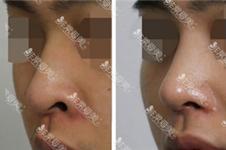 足不出户体验韩国名医的高超修复技术,你关注的眼鼻轮廓!