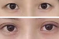 韩国me双眼皮是什么技术,可靠吗?与5m无痕双眼皮是一回事?