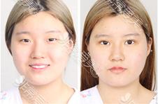 韓國K整形醫院眼鼻手術多少錢?在韓國口碑優秀嗎?