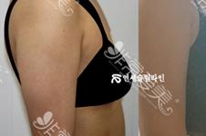 韩国延世slimline胳膊吸脂多少钱?医院位置在哪里?