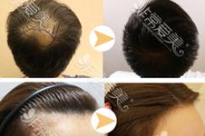 盘点日本植发对比韩国植发几点不同处,光审美观就过不去!