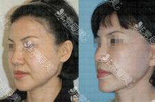 樸東滿拉皮費用多少錢,曾經在韓國做手術口碑如何?