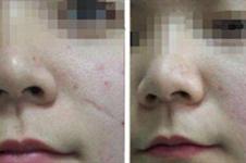 脸上的疤痕凹进去治疗方案曝光,有激光有手术你都知道吗
