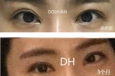 韩国眼部修复十大出名医生盘点,厉害医生学术背景也牛!