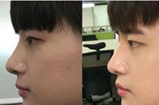 在韩国GLORY医院眼鼻综合手术日记43天记录过程