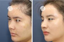 韩国nano做鼻子多少钱,赵重衍整鼻子做得很高吗?
