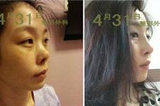 做了6次鼻子还有救吗?告诉你!韩国这些医院曾有修复经历