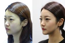 赵胄元在韩国怎么样?留学日本眼修复拿手你知道吗?