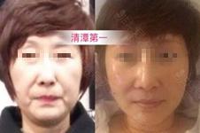 韩国除皱提升整形医院大全——从初老~50岁通通有推荐!