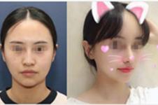 韩国nano鼻子为什么看起来很惊艳,是做得高吗?
