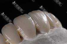 全瓷牙有几种材质扫盲贴!韩国日本都常用树脂还是其他?