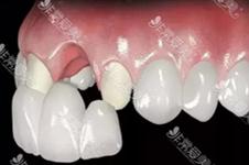 种植牙2颗装三个牙冠可行吗?会不会不牢固,原理是什么?