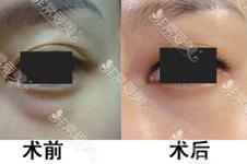 祛眼袋手术需多少钱能改善掉?解决问题不只是傻傻割眼袋