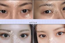 韓國沈裁善醫生職業生涯履歷曝光,眼鼻填充案例有特色