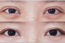 推荐双眼皮失败修复韩国医院:Misoline整形1mm整形Righthand医院
