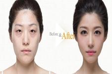 自体脂肪填充为什么要选韩国德莱茵整形外科?