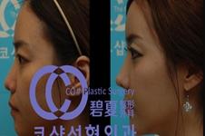 韩国碧夏整形医院肋软骨隆鼻效果怎么样?