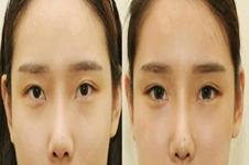 韩国TS整形、清谭First、EVE医院眼修复怎么样?各有什么特色?