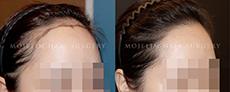 为什么很多人去韩国做植发?韩国毛杰琳植发靠谱吗?