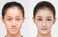 韓國面部輪廓哪家技術好,佰諾佰琪真人案例看一看