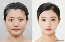 韩国DA整形面部轮廓做的好吗?院长李相雨曾参加Let美人