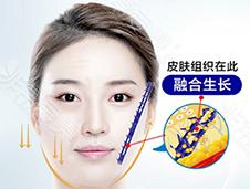 韩国朴明旭院长小切口三重提升与普通面部提升有什么区别
