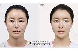 脂肪填充效果如何,能够维持多久?韩国脂肪填充医院推荐