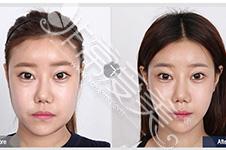 面部不对称该如何矫正,韩国哪位院长矫正效果好?