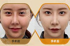 面部脂肪填充失败脸很假,韩国芙莱思面部填充修复靠谱吗