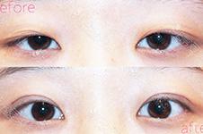 韩国BIO洪星杓:双眼皮手术不能完全改善先天性上眼皮下垂
