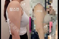 手臂吸脂很多人没细,还凹凸不平?韩国手臂吸脂效果好吗