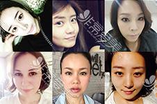 韩国流行什么面部提升...