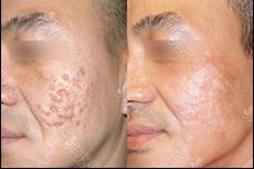 韩国明星皮肤管理、研发护肤品的林二石皮肤科敢信吗