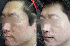 韩国有名的皮肤管理中心有哪些?去黑头缩毛孔效果好吗?