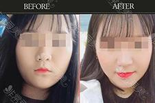 面部吸脂后下垂怎么办?解析韩国面吸好的医院如何避免