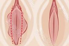 外阴长个肉能拽长这正常吗?小阴整形多少钱能做?