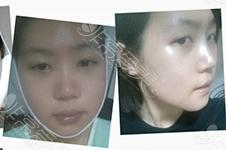 韩国面部轮廓修复cook、卢相勋NJH做得好吗?