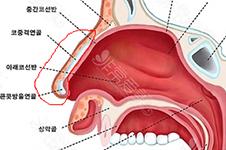 有鼻炎可以隆鼻吗?如果隆鼻后鼻炎犯了应该怎么办?