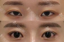 韩国美容整形高手18人之一的崔宰源不开眼角眼睛可以变大?