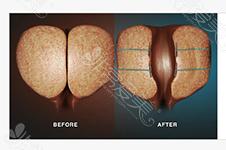 韩国男科使用的前列腺激光气化手术与电切有什么区别?
