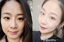 韩国轮廓术劈外板脸会垮吗?下颌角劈外板还会长厚吗?