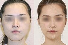 韩国轮廓针科普利弊:分析与溶脂针的区别与危害