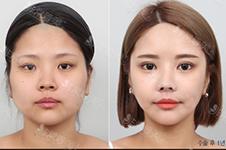 瘦脸只有打瘦脸针吗?韩国轮廓三件套手术还不错!