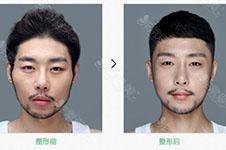 面部轮廓手术针对哪些部位?手术方式是什么?