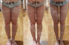 韩国针对小腿脂肪型和肌肉型粗壮怎么做?这篇文章告诉你!