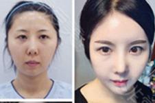 韩国自体脂肪填充面部后导致脸部下垂,是填充过量了吗?