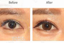 开眼角后为什么会出现疤痕增生?怎么预防疤痕增生?