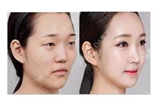 脂肪填充一个月想溶掉?面部填充后真的很难看吗?